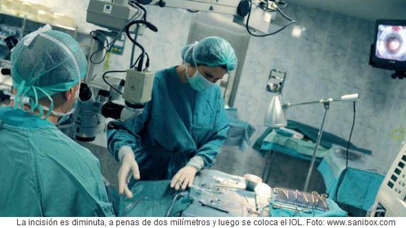 Cirugía de implantación de lente intraocular - IOL