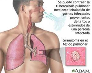 Tuberculosis, enfermedad, epidemia, vias respiratorias - noticias