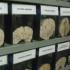 Museo del Cerebro, una insólita colección en Lima