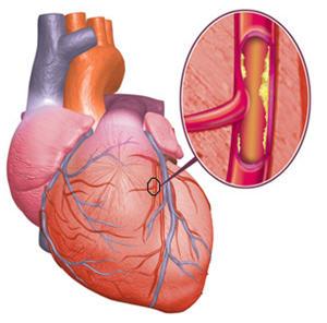 Enfermedades cardiovasculares, problemas del corazón - noticias