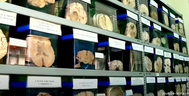 Museo del Cerebro es una insólita colección en Lima