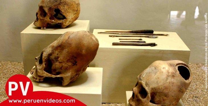 Imagen de trepanaciones craneanas paracas en el post del Museo Virtual de Paracas